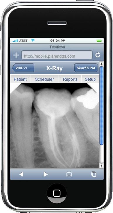 iPhone Xray