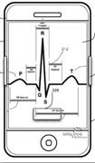 iPhone Hartslagmeter
