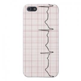 iPhone heartbeat