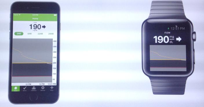 Apple Watch Dexcom bloedsuiker
