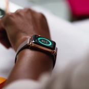 Hoeveel straling veroorzaakt een Apple Watch?