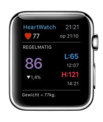 HeartWatch op de Apple Watch met gegevens van vandaag.