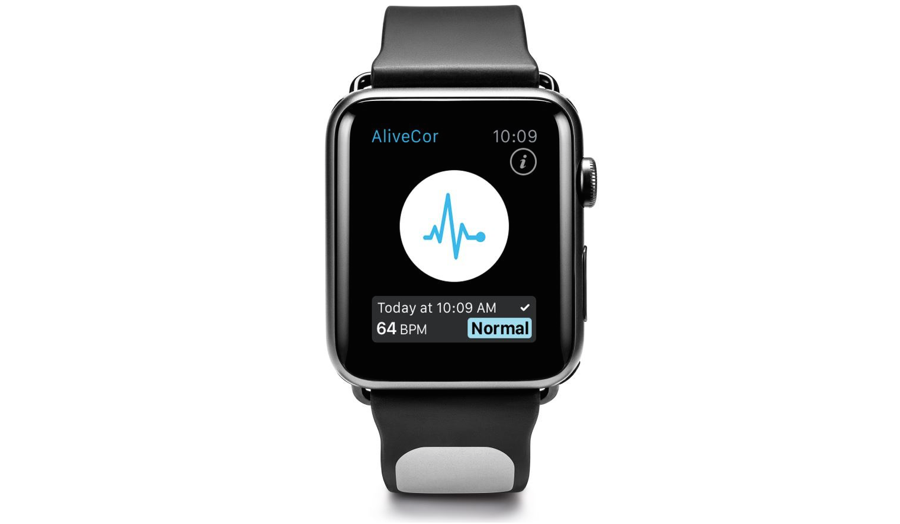 De Kardia-app op de Apple Watch met de Kardia Band.