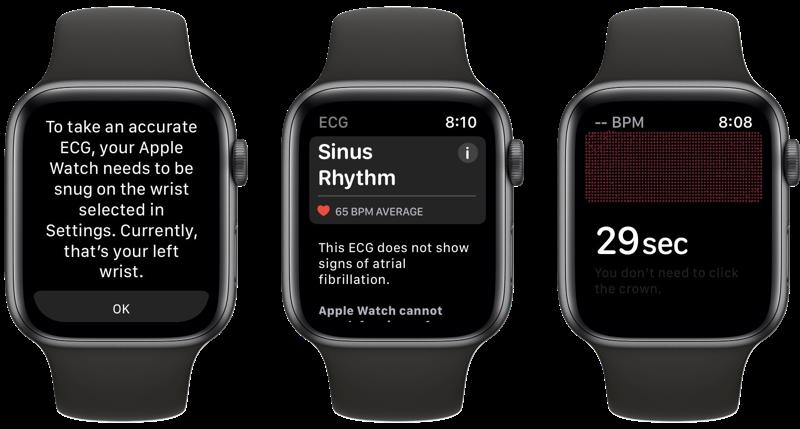 ECG gebruiken op Apple Watch.