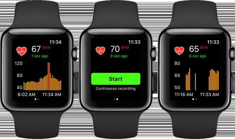 Cardiogram-app