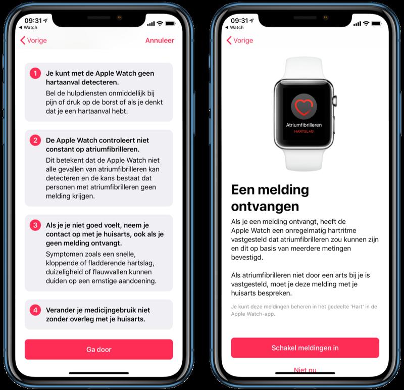 Melding voor onregelmatig ritme op Apple Watch bevestigen.