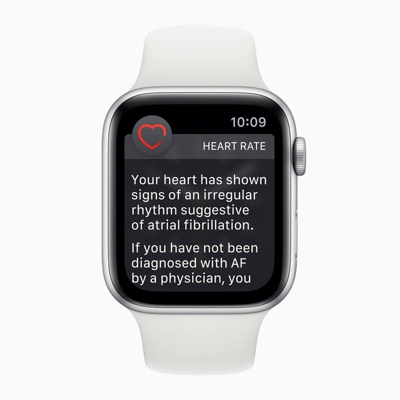 Melding van onregelmatig hartritme op de Apple Watch.