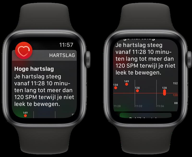 Apple Watch hoge hartslag waarschuwing.